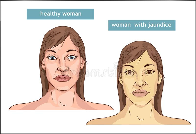 The Comparison between normal skin people and yellowing from Jaundice vector illustration