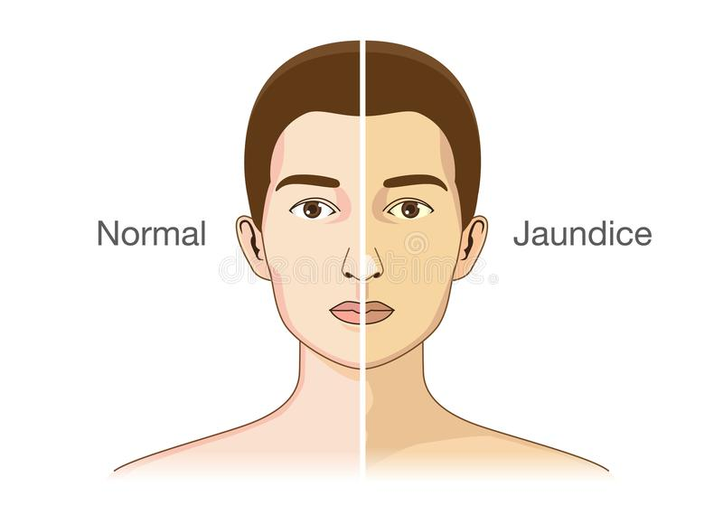 The Comparison between normal skin people and yellowing from Jaundice. vector illustration
