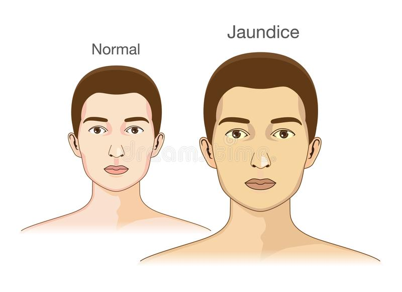 The Comparison between normal skin people and yellowing from Jaundice. stock illustration