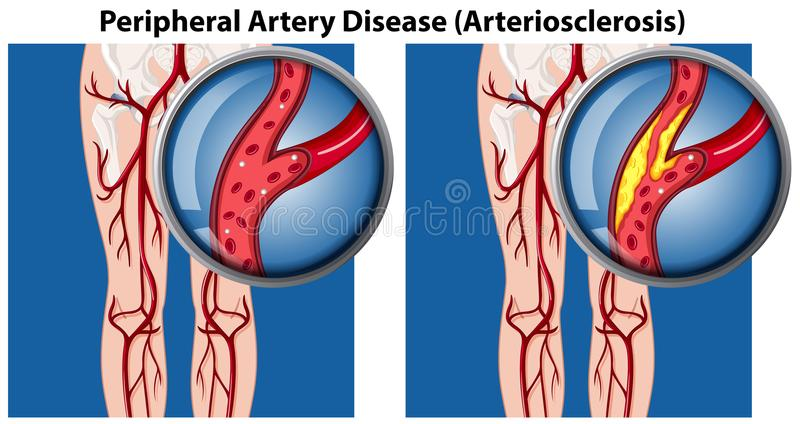 A Comparison of Peripheral Artery Disease stock illustration