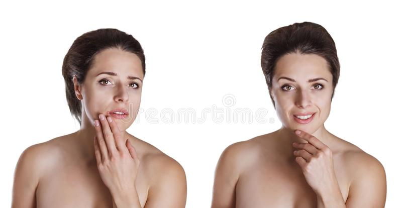 Woman With Cold Sore Touching Her Lips  Herpes On Lips Stock