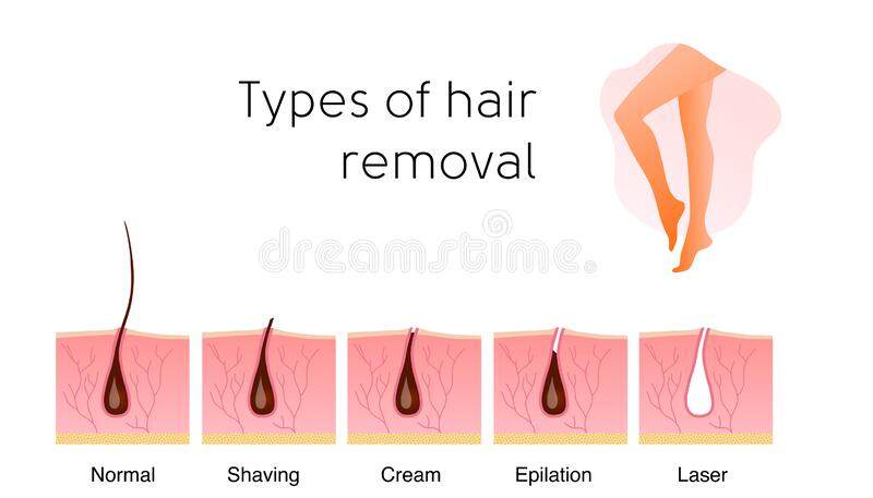 Epilation And Depilation Difference Stock Vector