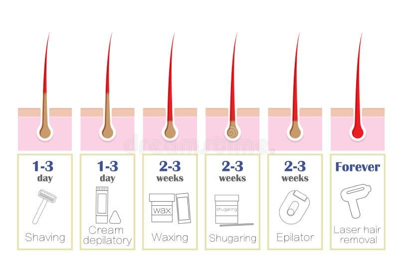 Comparison Of The Popular Methods Of Hair Removal Laser Epilator Waxing Shaving Shugaring Stock Illustration Illustration Of Removal Depilation 89816299