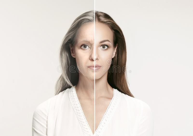 Comparison. Portrait of beautiful woman with problem and clean skin, aging and youth concept, beauty treatment stock image