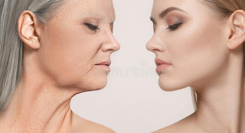 Comparison. Portrait of beautiful woman with problem and clean skin, aging and youth concept, beauty treatment. And lifting. Before and after concept. Youth stock image