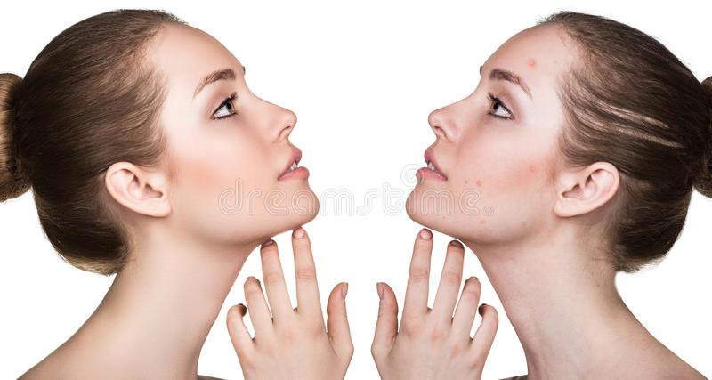 Comparison portrait of problematic skin stock images