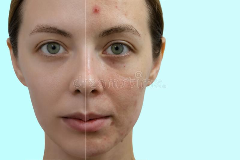 Comparison portrait of a woman with problematic skin stock image