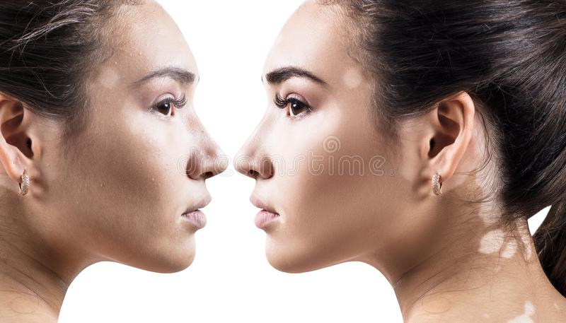 Comparison portrait of young woman with and without makeup. stock images