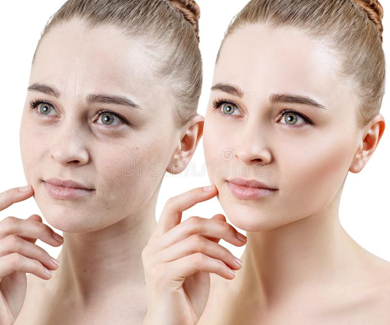 Comparison portrait of young woman before and after retouch stock photography