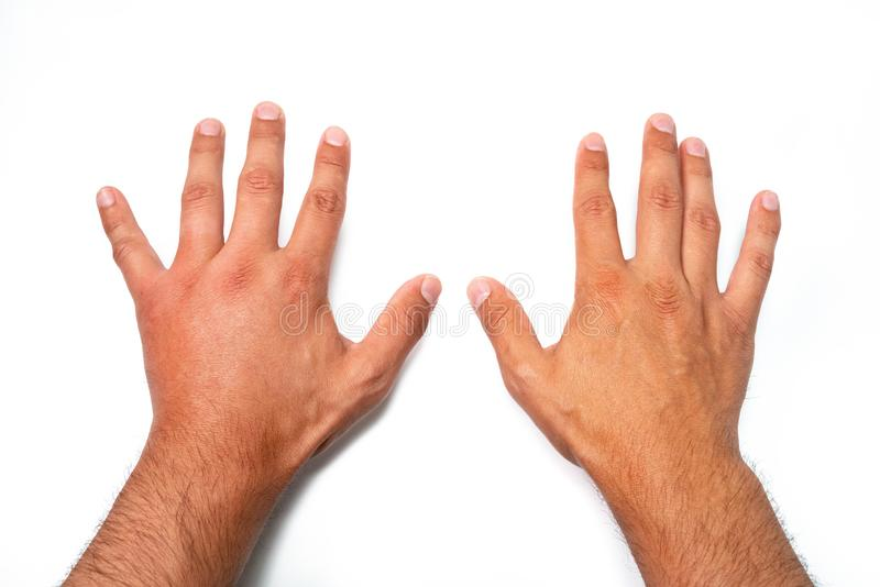 Comparison of two male hands stung by bee or wasp. Hand swelling, inflammation, redness are signs of infection. Insect bite on. Left hand on white background royalty free stock image