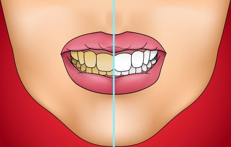 Comparison of unhealthy teeth with white clean healthy teeth stock images