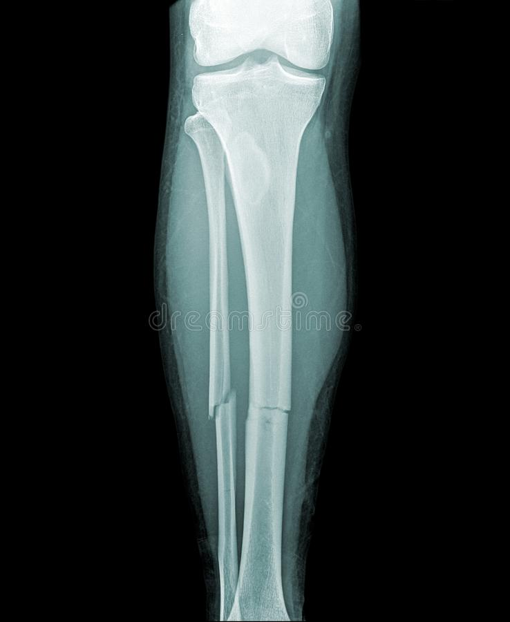Complete fracture of the lower leg. Image of a broken lower leg, fracture of the tibia and fibula in the middle of the lower leg. little dislocation stock illustration