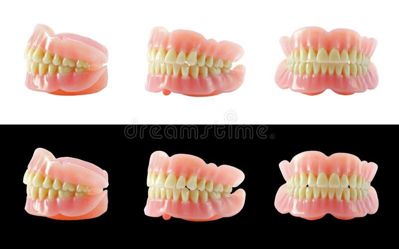 Completi le protesi dentarie fotografia stock libera da diritti