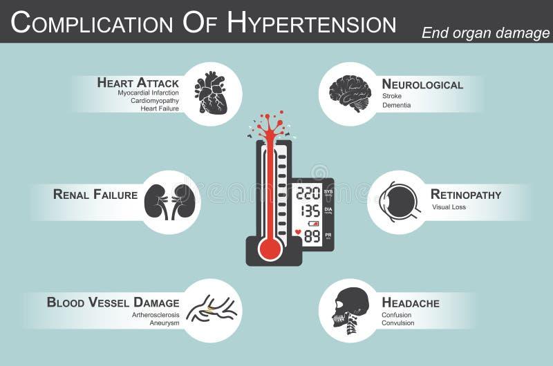 Complicação da hipertensão ilustração royalty free