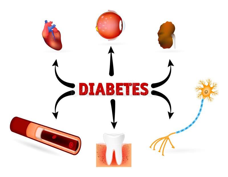 Complicaciones de la diabetes mellitus stock de ilustración