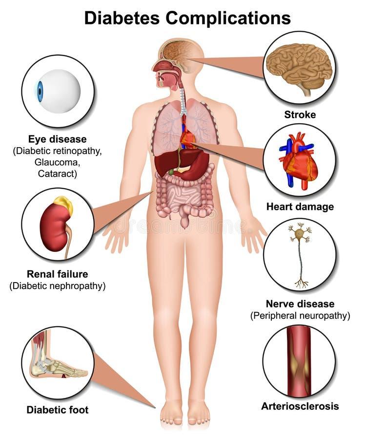Complicaciones de la diabetes y ejemplo médico 3d de las enfermedades en el fondo blanco libre illustration