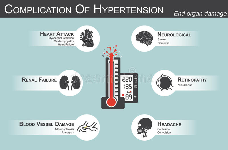 Complication of Hypertension. ( myocardial infarction , cardiomyopathy )( stroke , dementia )( visual loss )( Headache )( Renal failure )( Artherosclerosis royalty free illustration