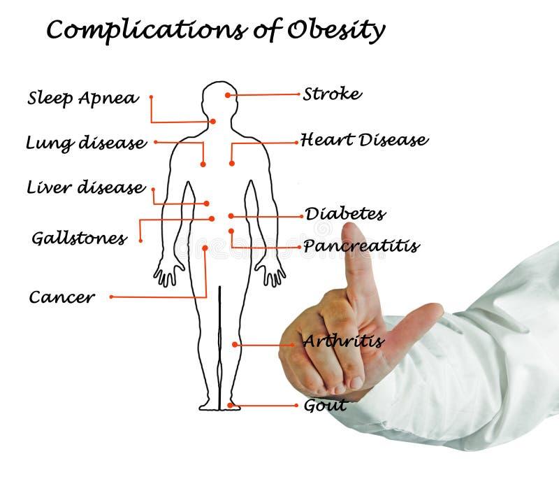 Complications de l'obésité photo stock