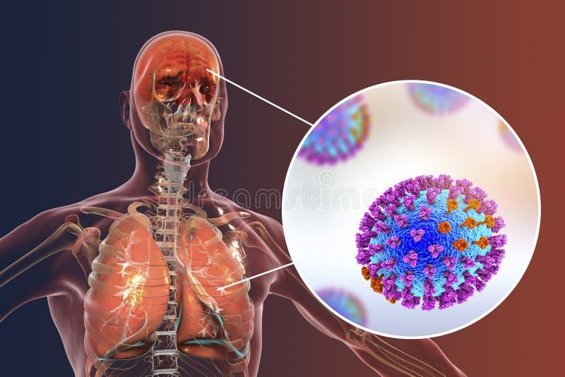Complications, encéphalite et pneumonie de grippe illustration stock