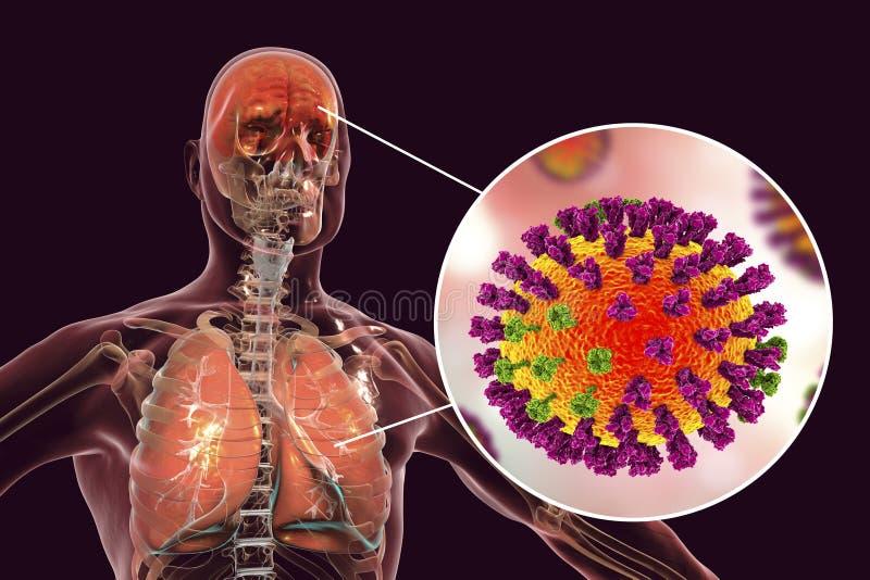 Complications, encéphalite et pneumonie de grippe illustration libre de droits