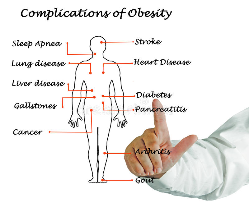 Complications of Obesity. Presenting diagram of Complications of Obesity stock photo