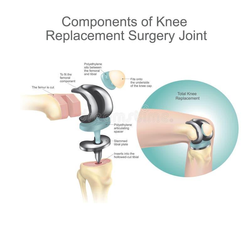 Componentes de la junta de la cirugía del reemplazo de la rodilla ilustración del vector
