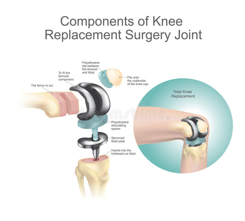 Components Of Knee Replacement Surgery Joint Stock Vector