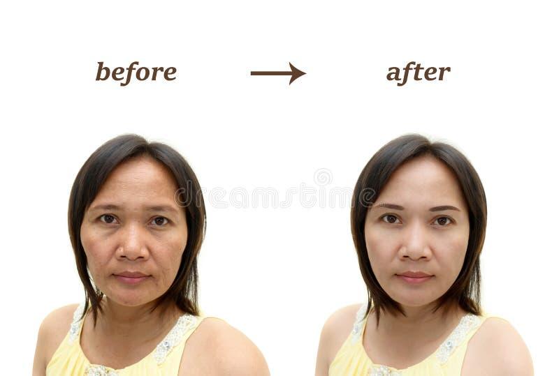 Composição ou cirurgia plástica foto de stock