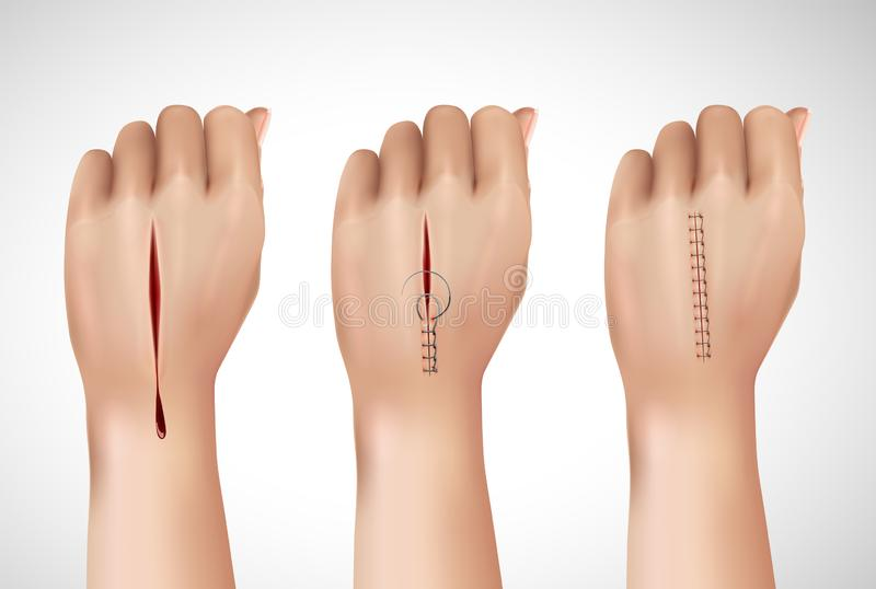 Composición de manos de costura quirúrgica ilustración del vector
