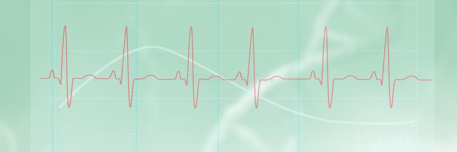 Composite image of digitally generated image of electrocardiography 3d. Digitally generated image of electrocardiography against dna strands on green background vector illustration