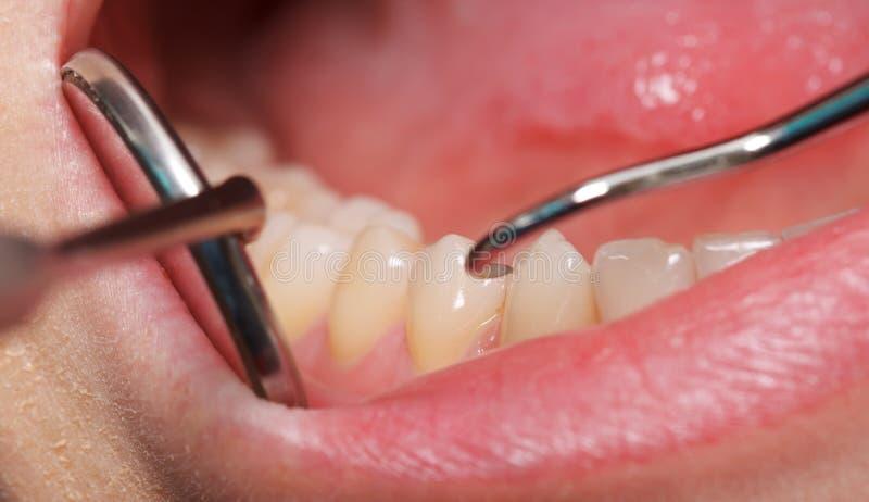 Comprehensive dental examination. Periodic comprehensive dental examination to have a healthy mouth and teeth royalty free stock photos