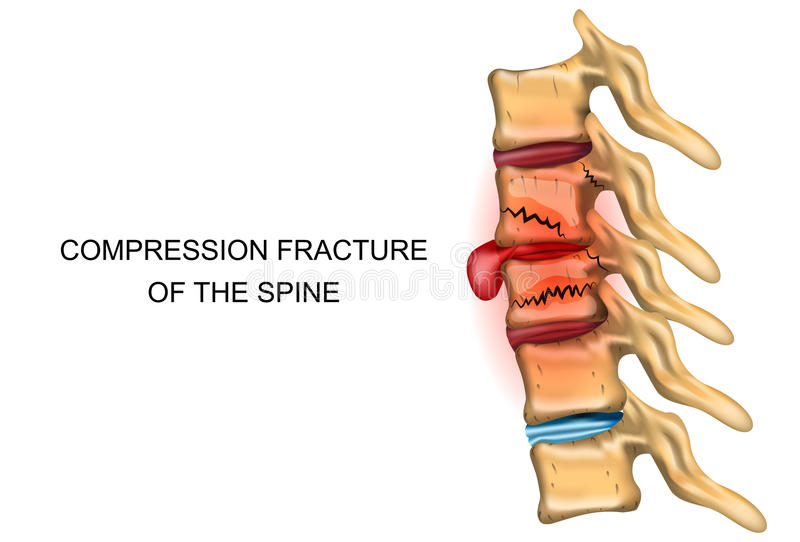 Compression fracture of the spine. Vector illustration of a compression fracture of the spine vector illustration