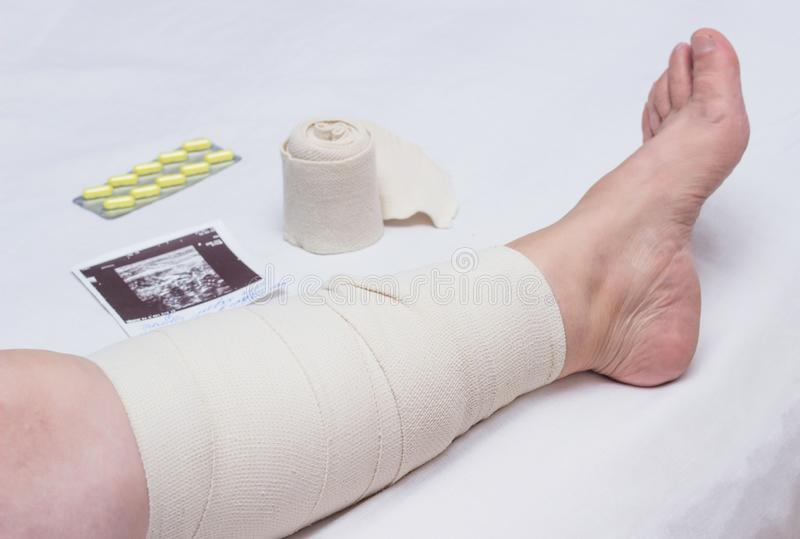 Compression therapy for varicose veins in a woman`s legs, treatment of varicose veins with an elastic bandage, vascular royalty free stock images