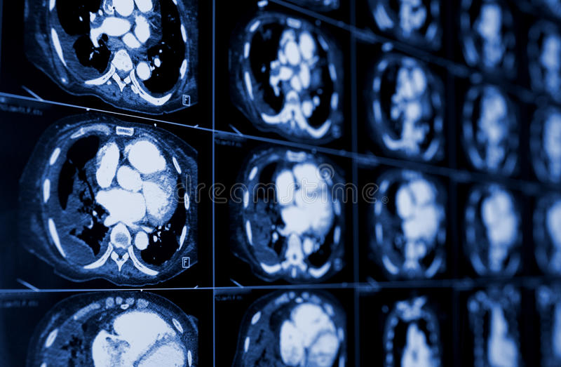 Computed tomography of the chest. Medical background. stock images