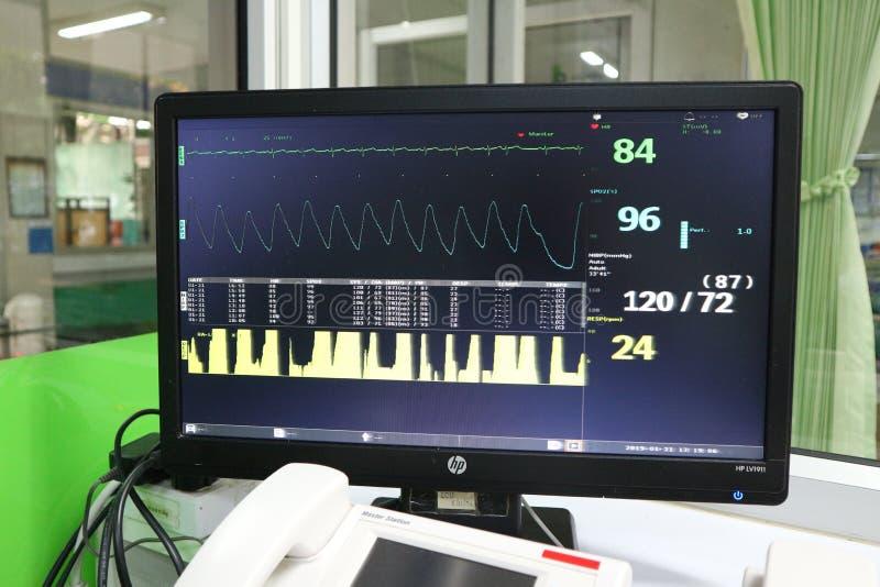 Computermonitor voor het werken om patient& x27 te zien; s de meting van de hartimpuls stock afbeelding