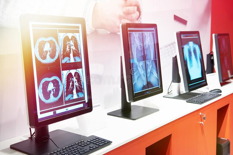 Computers with monitors for medicine. On exhibition stock photo