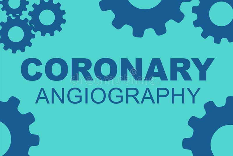 Conceito CORONÁRIO da ANGIOGRAFIA ilustração royalty free