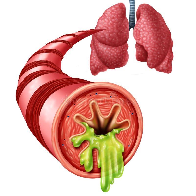 Conceito da anatomia da bronquite ilustração royalty free