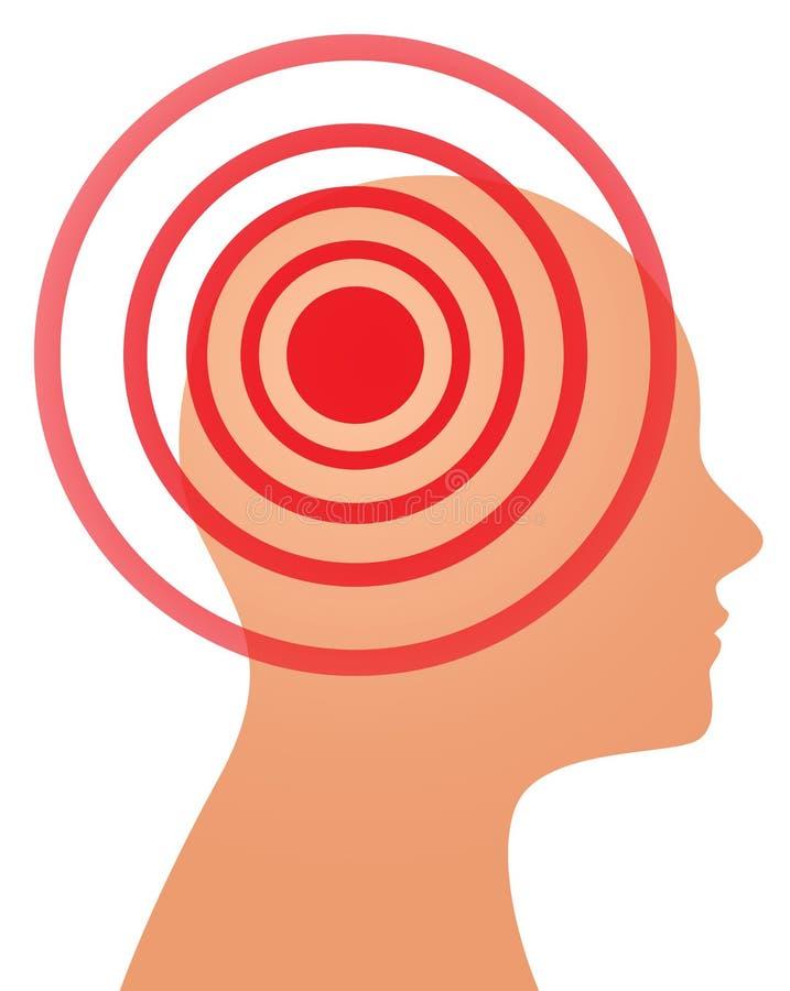 Conceito da dor de cabeça ou da enxaqueca ilustração royalty free