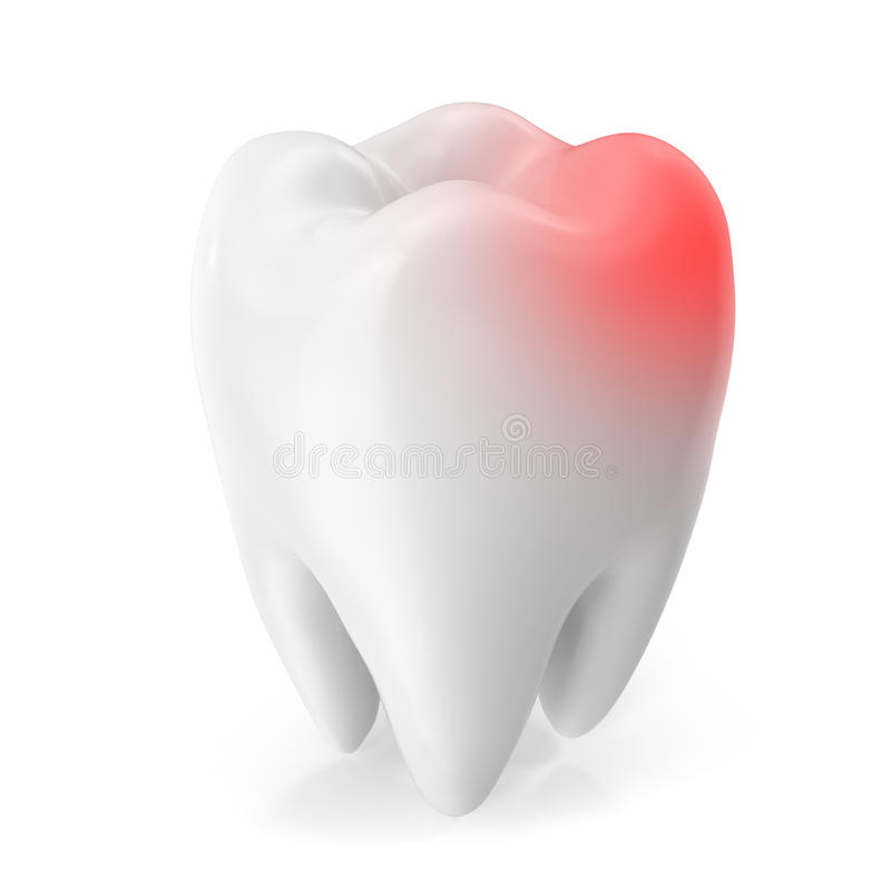 Conceito da dor de dente, conceito da cárie isolado no fundo branco rendição 3d ilustração do vetor