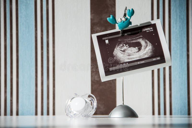 Download Conceito Da Gravidez: Foto E Pacifier Do Ultra-som Foto de Stock - Imagem de vida, maternidade: 26503524