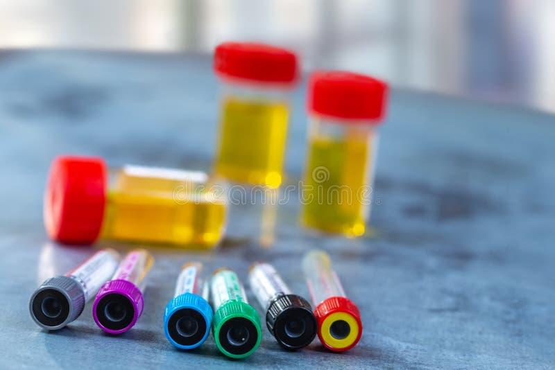 Conceito da pesquisa: Tubos de análise laboratorial coloridos, análises de sangue, análise à urina, análise médica, fertilidade s fotos de stock