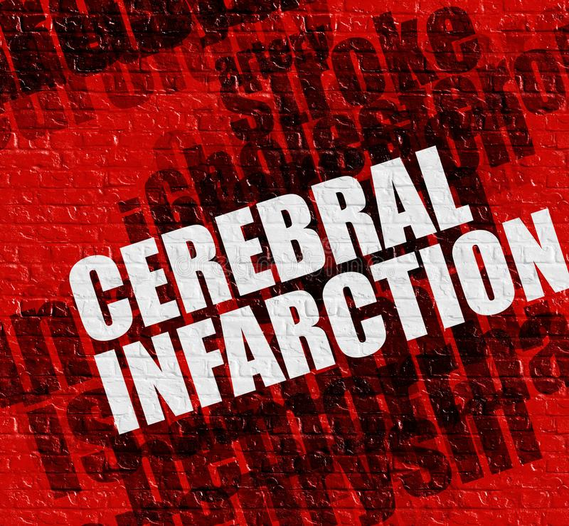 Conceito da saúde: Infarto cerebral na parede de tijolo vermelho ilustração stock