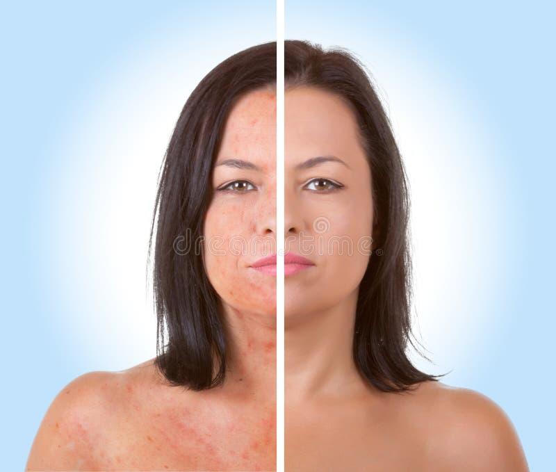 Conceito do cuidado de pele Woman modelo novo com problema de pele antes do imagem de stock