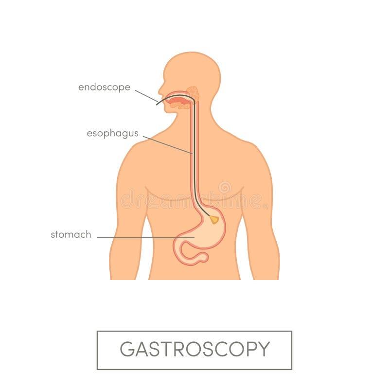 Conceito do gastroscopy do vetor ilustração do vetor