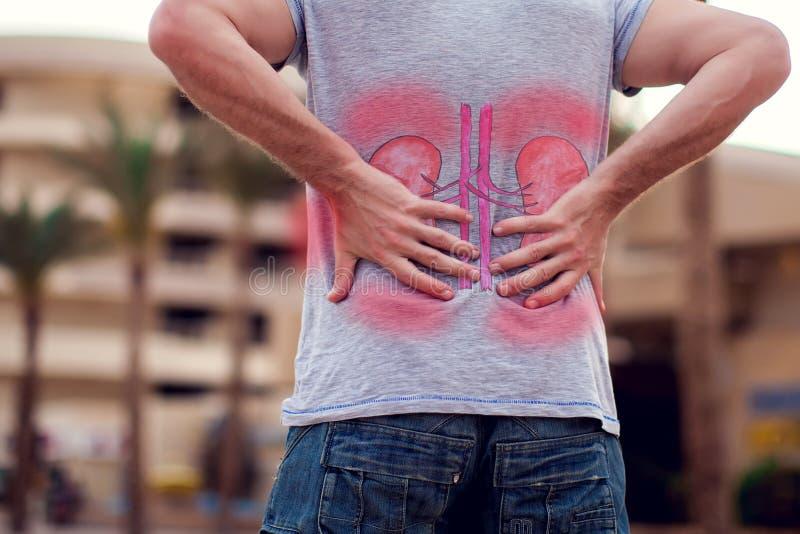 Conceito dos povos, dos cuidados médicos e da medicina - sofrimento infeliz do homem da dor na parte traseira ou nos rins exterio imagens de stock