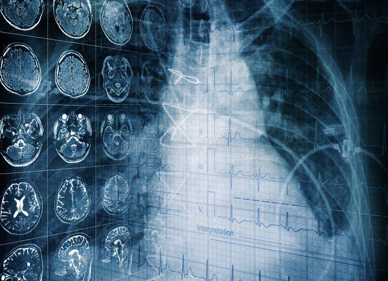 Conceito médico de um exame paciente do ` s usando o technolo moderno fotos de stock royalty free