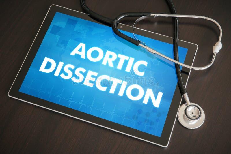 Conceito médico do diagnóstico aórtico da disseção (desordem de coração) sobre foto de stock royalty free