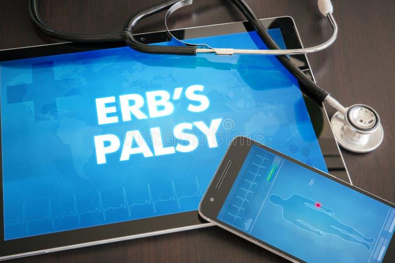 Conceito médico do diagnóstico da paralisia de Erb (desordem neurológica) fotografia de stock royalty free