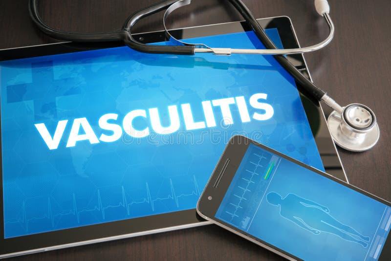 Conceito médico do diagnóstico do Vasculitis (desordem de coração) na tabuleta fotografia de stock